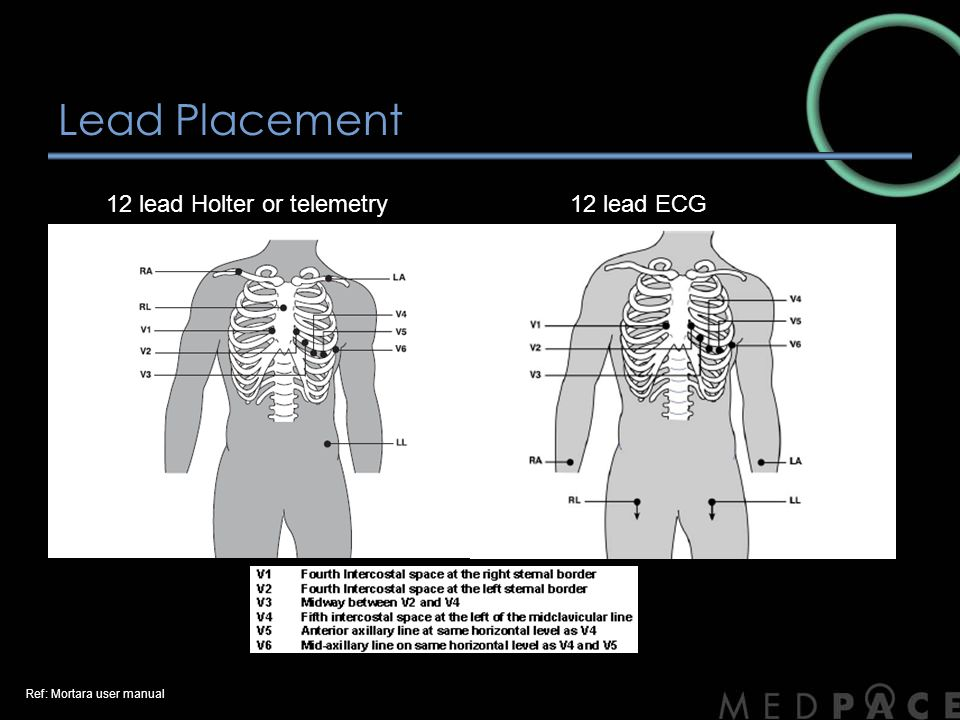 Lead Placement 12 lead Holter or telemetry 12 lead ECG
