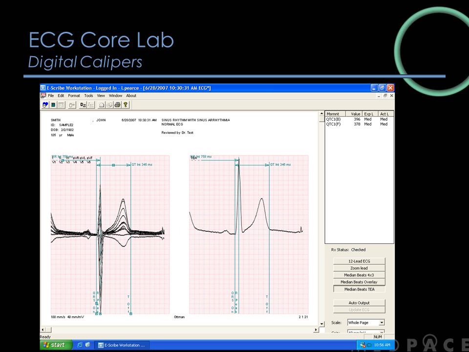 ECG Core Lab Digital Calipers