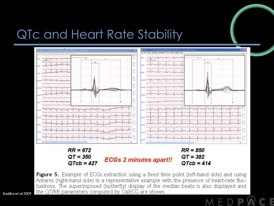 QTc and Heart Rate Stability