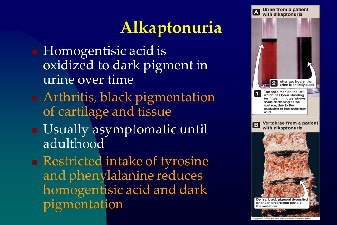 Alkaptonuria Homogentisic acid is oxidized to dark pigment in urine over time. Arthritis, black pigmentation of cartilage and tissue.