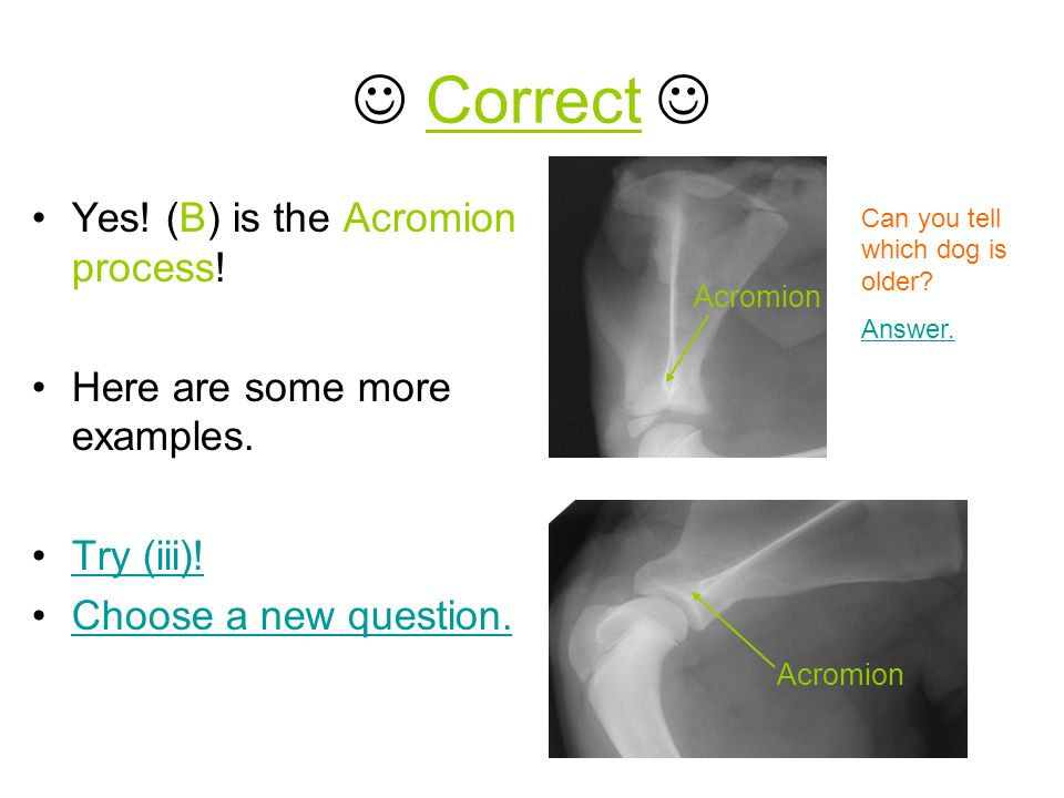  Correct  Yes! (B) is the Acromion process!