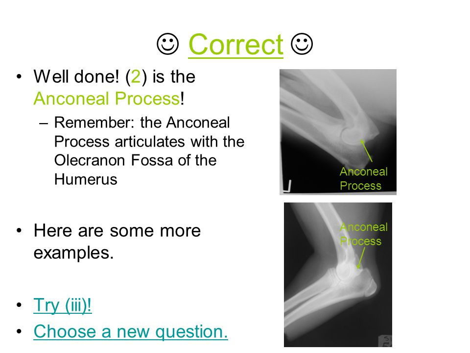  Correct  Well done! (2) is the Anconeal Process!
