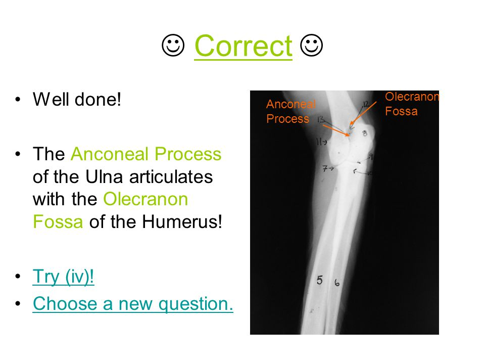  Correct  Well done! The Anconeal Process of the Ulna articulates with the Olecranon Fossa of the Humerus!