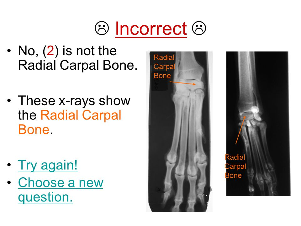 Incorrect  No, (2) is not the Radial Carpal Bone.