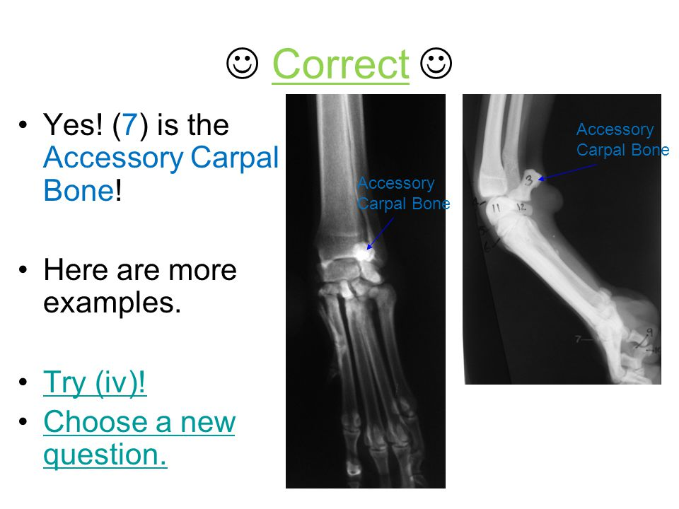  Correct  Yes! (7) is the Accessory Carpal Bone!