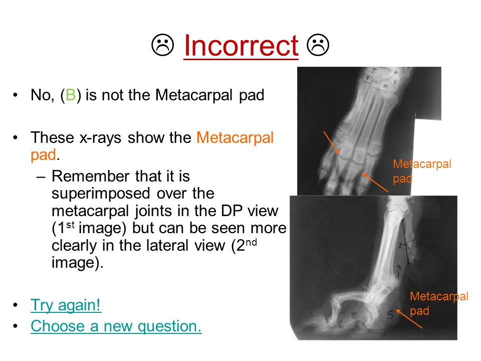  Incorrect  No, (B) is not the Metacarpal pad