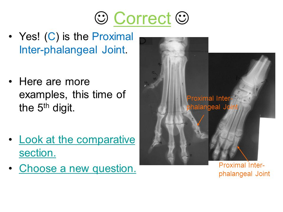  Correct  Yes! (C) is the Proximal Inter-phalangeal Joint.