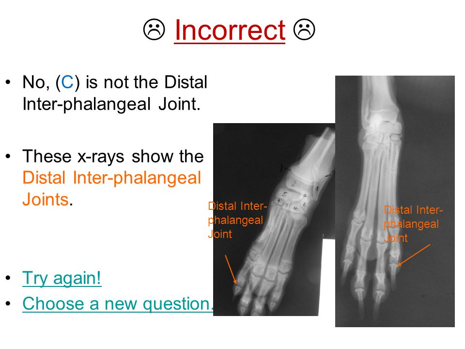  Incorrect  No, (C) is not the Distal Inter-phalangeal Joint.