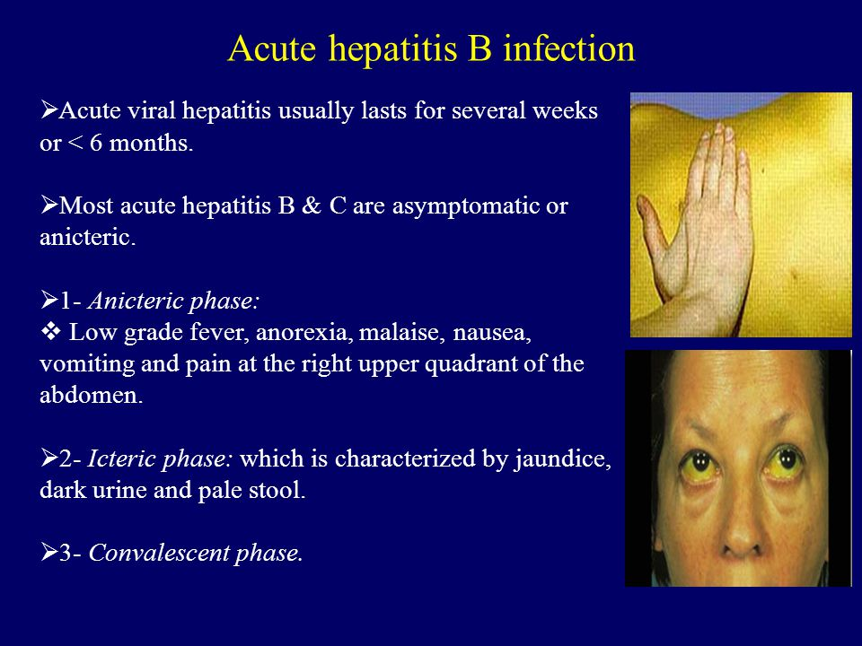 Acute hepatitis B infection