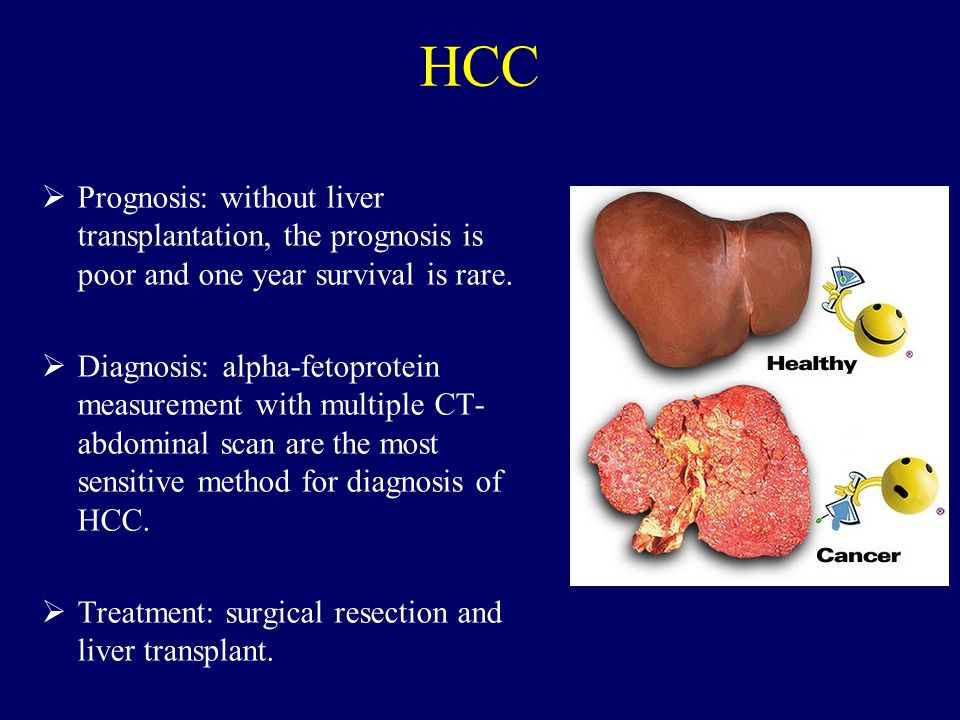 HCC Prognosis: without liver transplantation, the prognosis is poor and one year survival is rare.