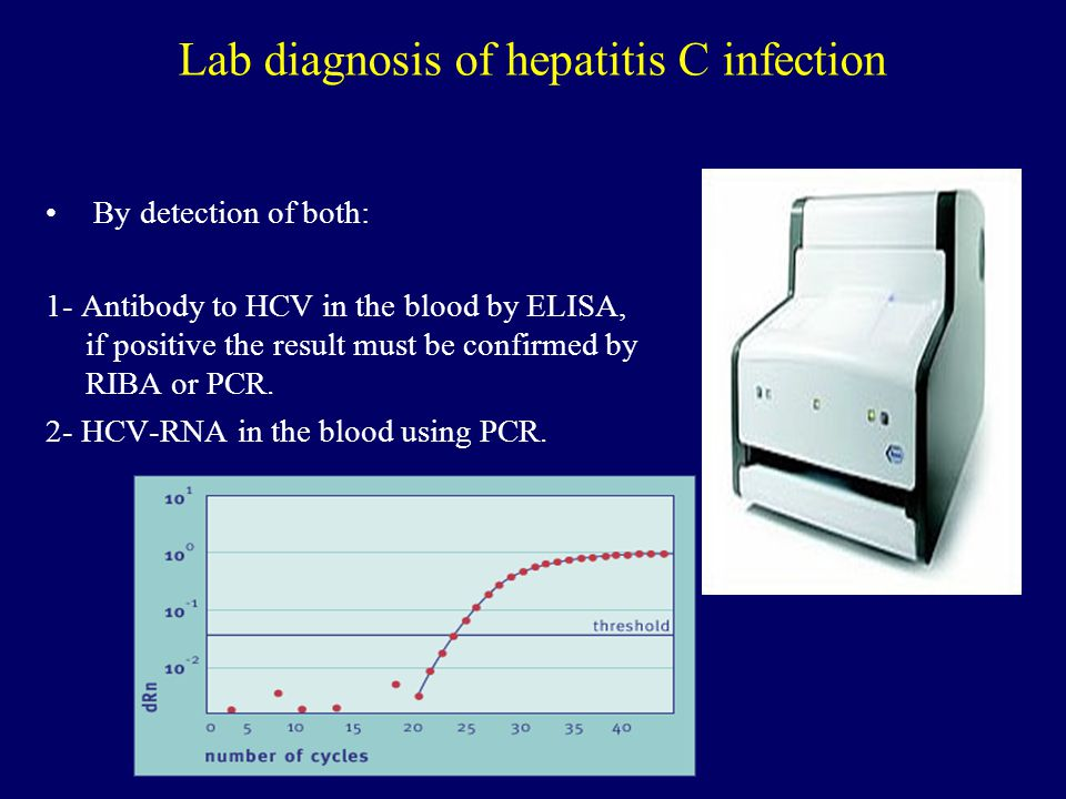 Lab diagnosis of hepatitis C infection