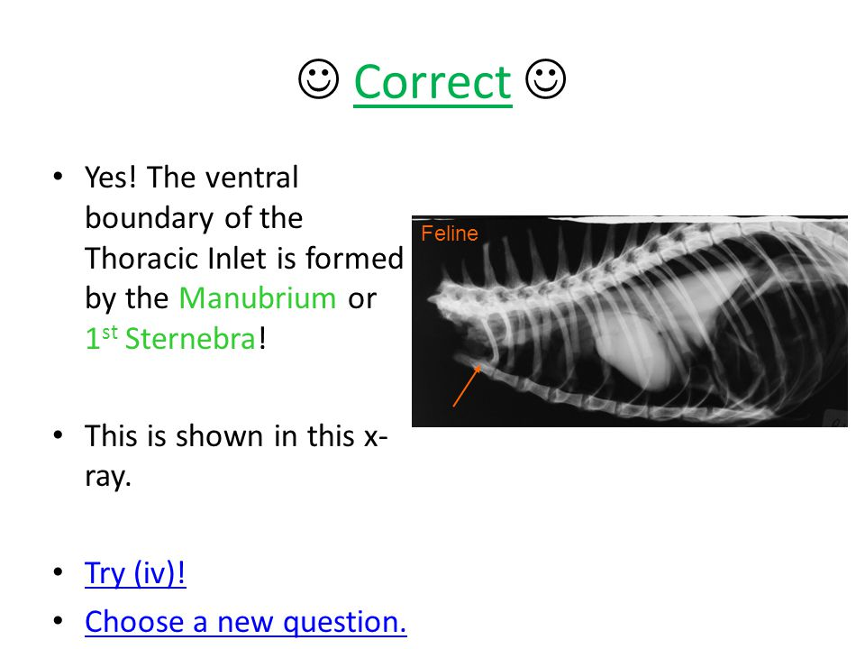 Correct  Yes! The ventral boundary of the Thoracic Inlet is formed by the Manubrium or 1st Sternebra!