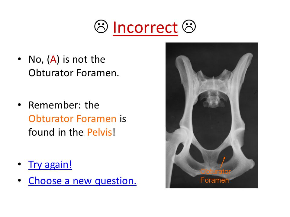  Incorrect  No, (A) is not the Obturator Foramen.