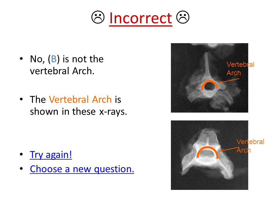 Incorrect  No, (B) is not the vertebral Arch.