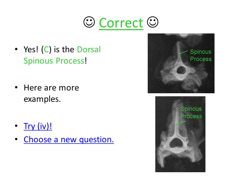  Correct  Yes! (C) is the Dorsal Spinous Process!