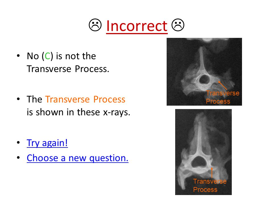  Incorrect  No (C) is not the Transverse Process.