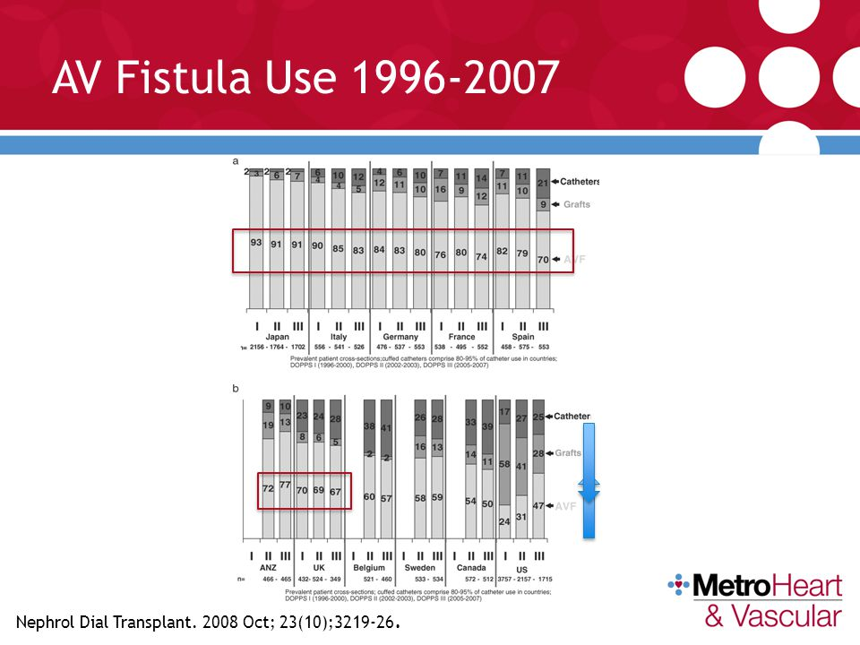 AV Fistula Use 1996-2007 Since 2005; there has been >65% AVF use in Japan, Italy, Germany, France, Spain, UK, Australia and New Zeeland,