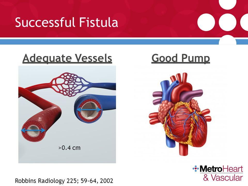 Successful Fistula Adequate Vessels Good Pump >0.4 cm