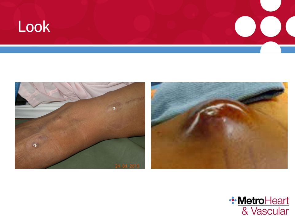 Look Early diagnosis of infection (rash, buttonhole erythema/edema, drainage) can prevent bacteremia and sepsis.