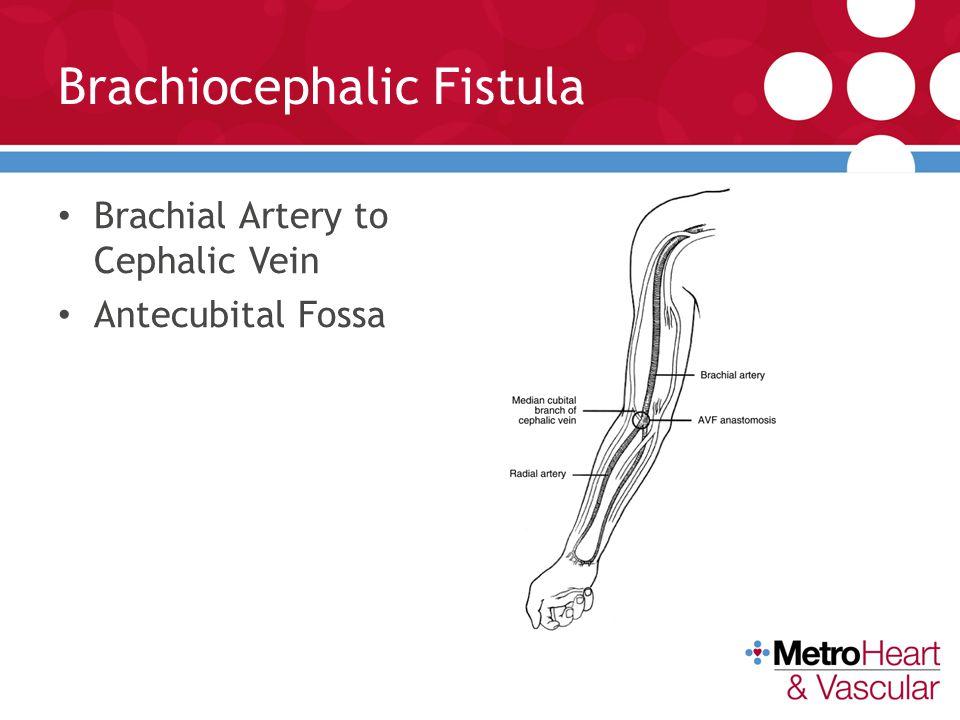Av Fistula Radiocephalic Arteriovenous Fistulas...