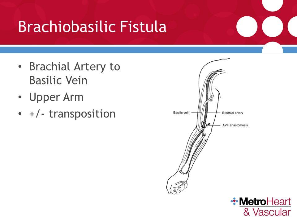 Brachiobasilic Fistula