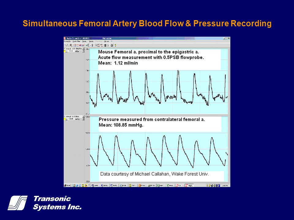 Simultaneous Femoral Artery Blood Flow & Pressure Recording
