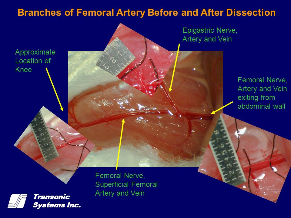 Branches of Femoral Artery Before and After Dissection