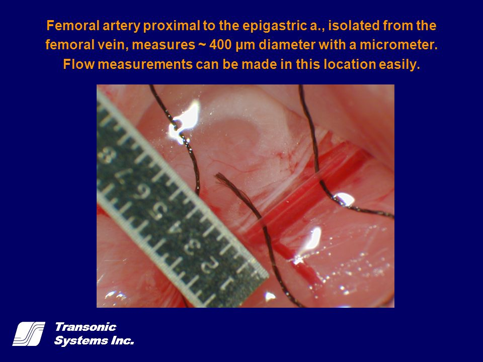 Femoral artery proximal to the epigastric a