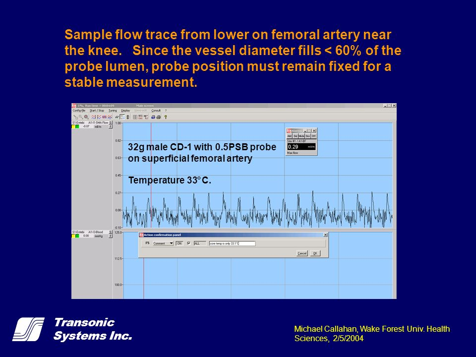 Sample flow trace from lower on femoral artery near the knee