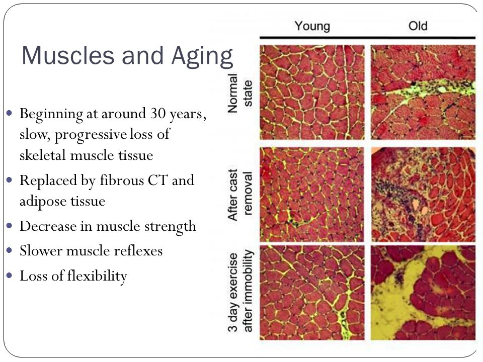 Muscles and Aging Beginning at around 30 years, slow, progressive loss of skeletal muscle tissue.
