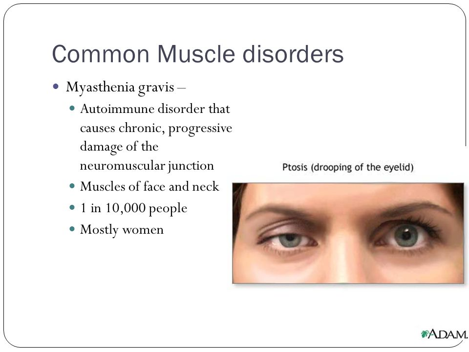 Common Muscle disorders