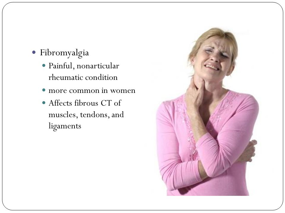 Fibromyalgia Painful, nonarticular rheumatic condition
