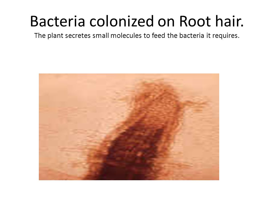 Bacteria colonized on Root hair