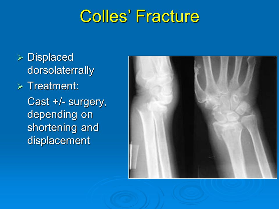Colles' Fracture Displaced dorsolaterrally Treatment: