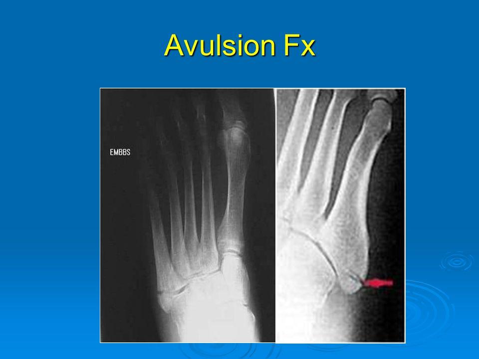 Avulsion Fx