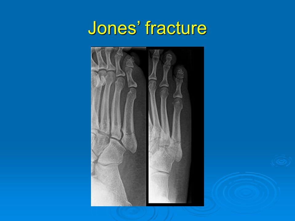 Jones' fracture