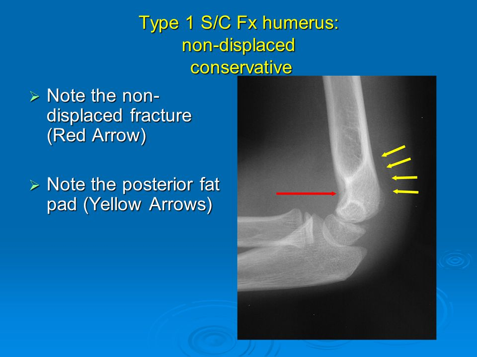 Type 1 S/C Fx humerus: non-displaced conservative