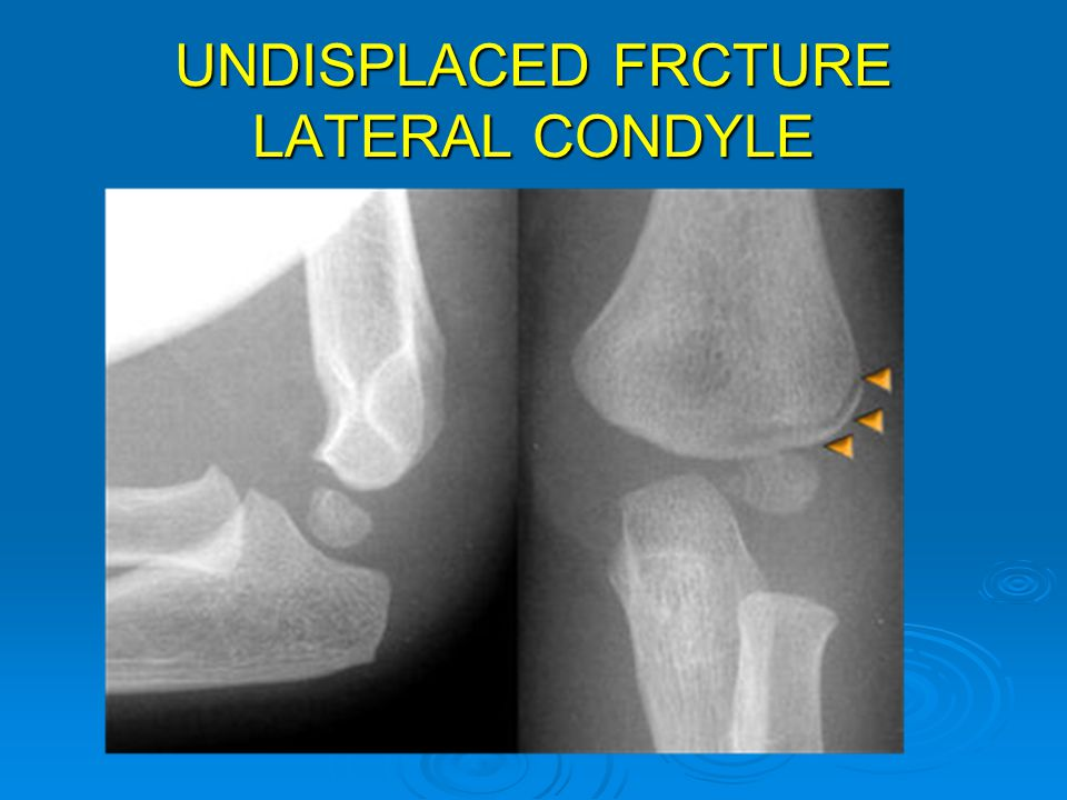 UNDISPLACED FRCTURE LATERAL CONDYLE