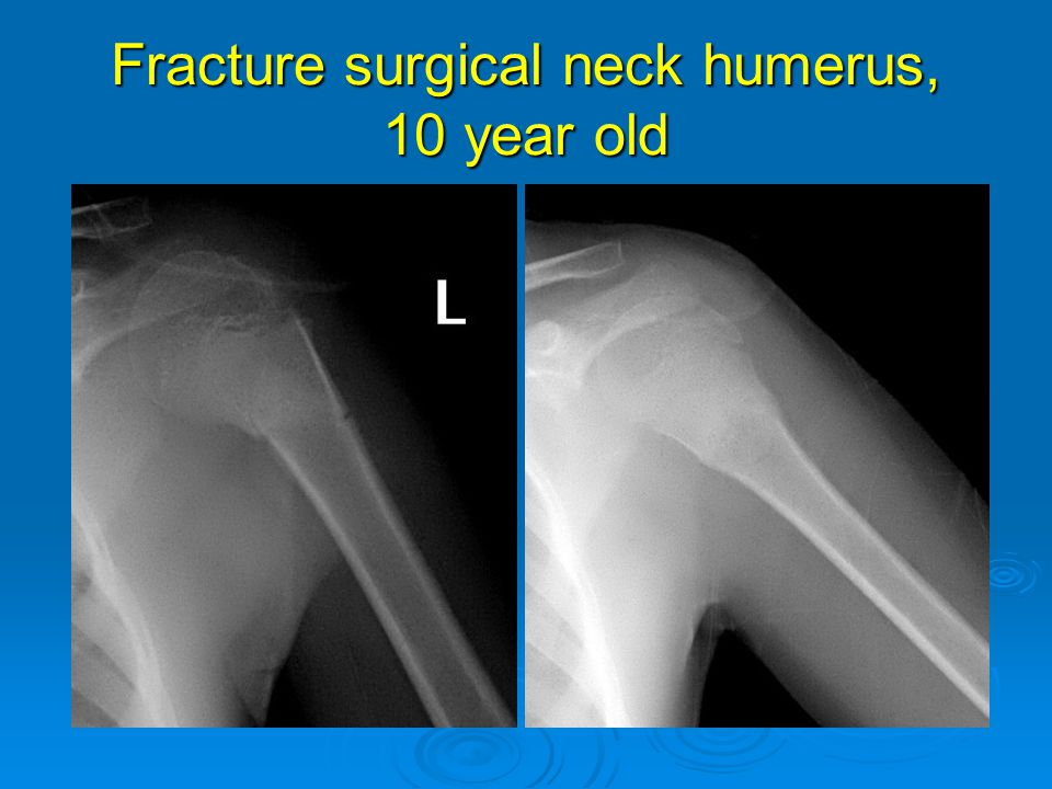 Fracture surgical neck humerus, 10 year old