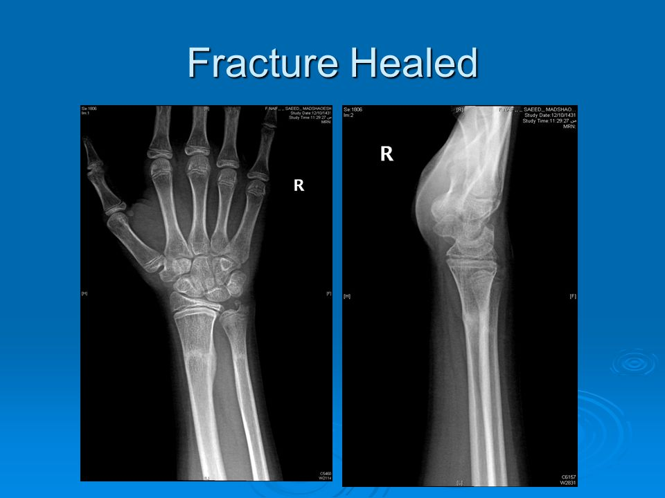 Fracture Healed