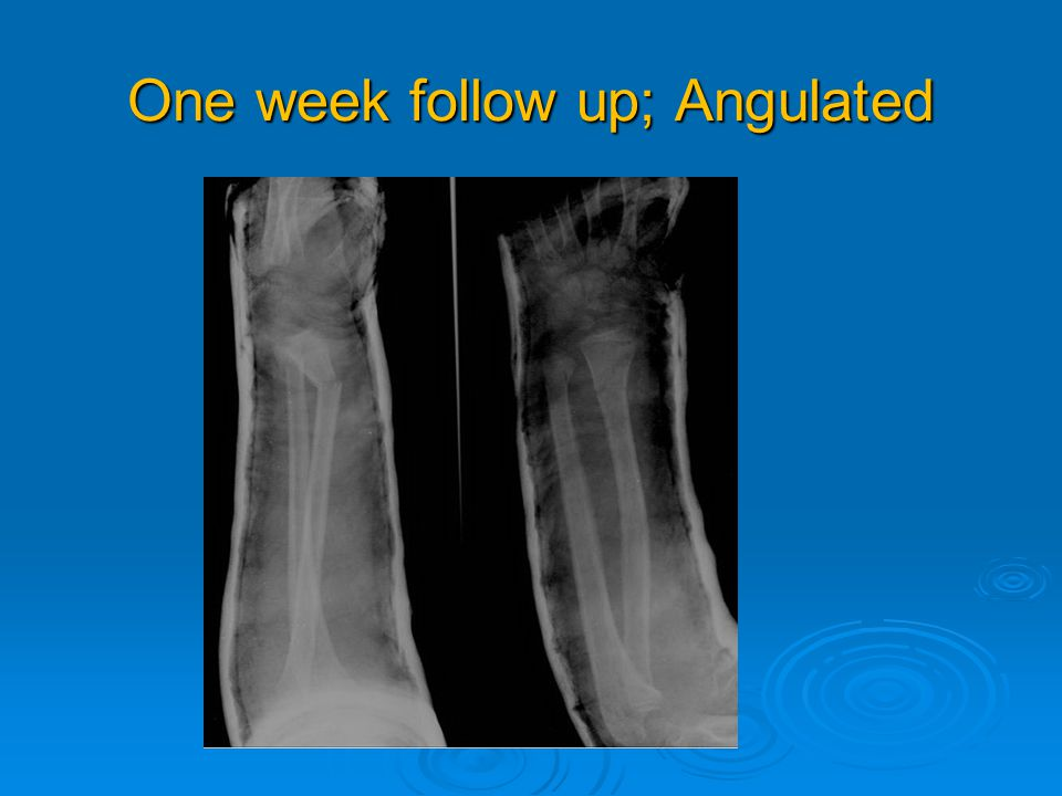 One week follow up; Angulated