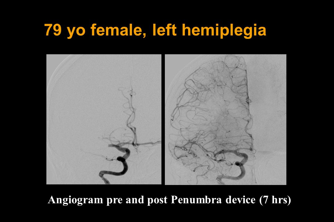 79 yo female, left hemiplegia
