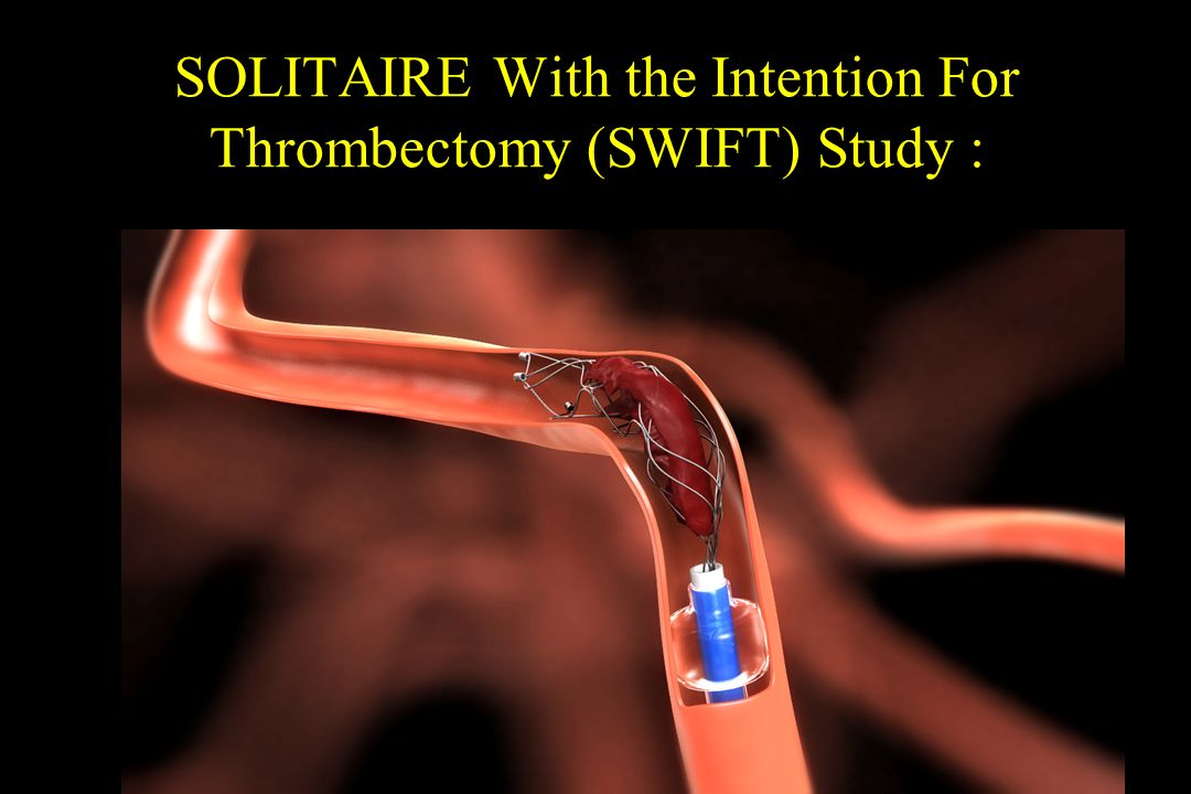 SOLITAIRE With the Intention For Thrombectomy (SWIFT) Study :