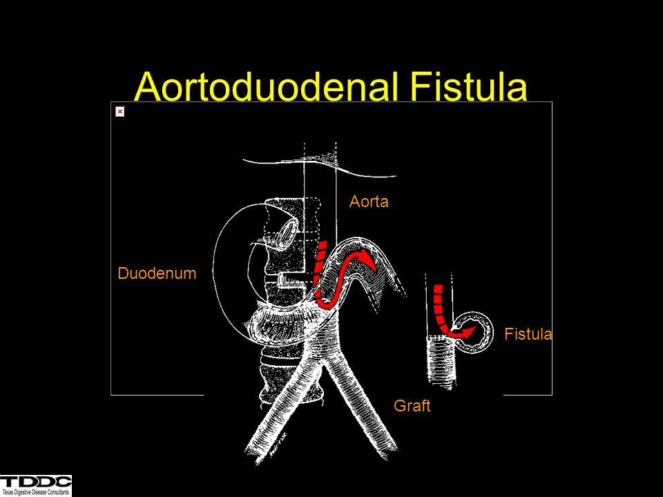 Aortoduodenal Fistula