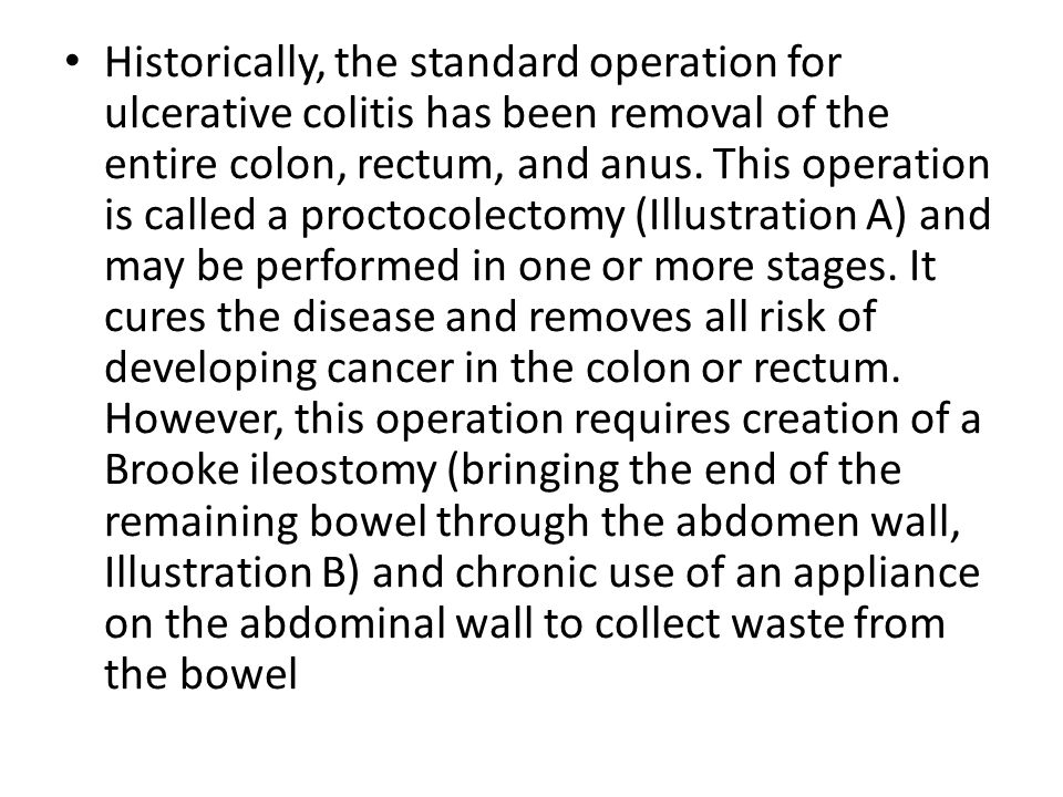 Historically, the standard operation for ulcerative colitis has been removal of the entire colon, rectum, and anus.