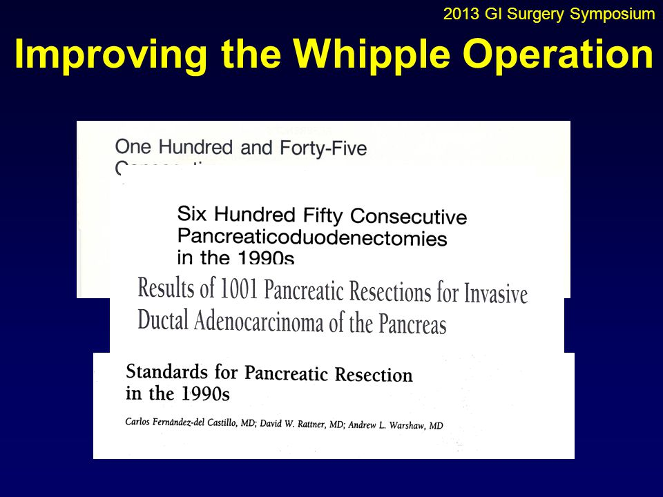 Improving the Whipple Operation