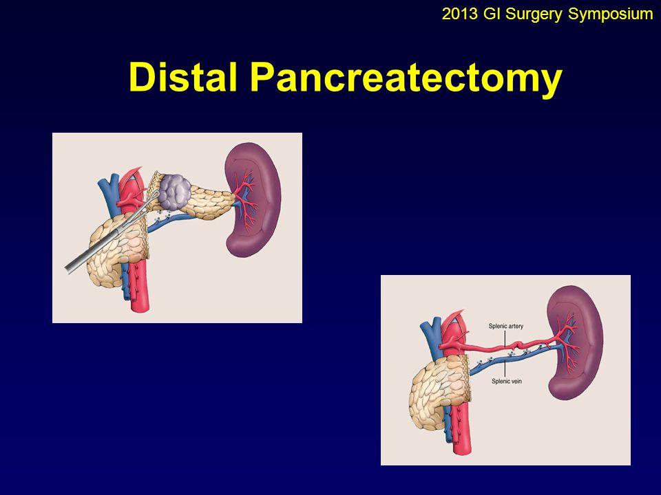 Distal Pancreatectomy