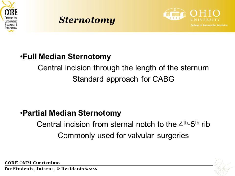 Sternotomy Full Median Sternotomy