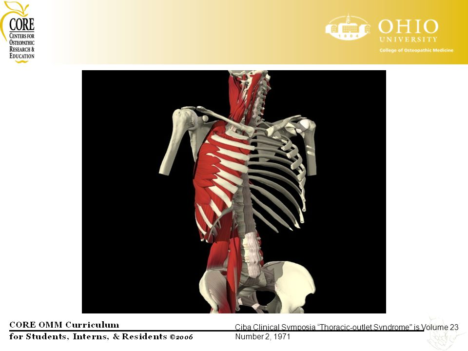 Ciba Clinical Symposia Thoracic-outlet Syndrome is Volume 23 Number 2, 1971