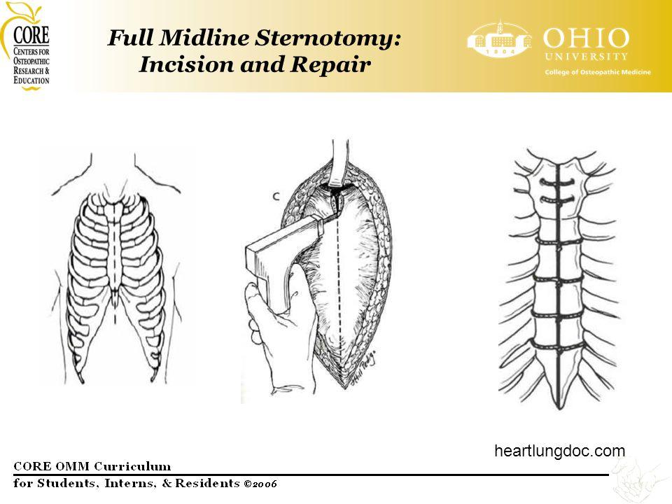 Full Midline Sternotomy: Incision and Repair